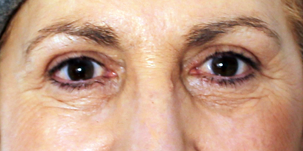 Lifting de Cejas - Después: lifting de ceja y blefaroplastia superior