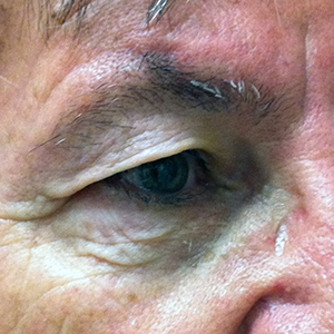 Upper Blepharoplasty - Before