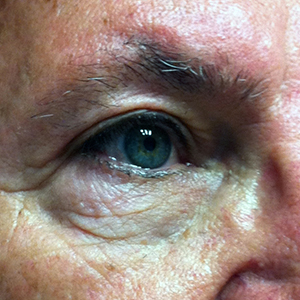 Upper Blepharoplasty - After